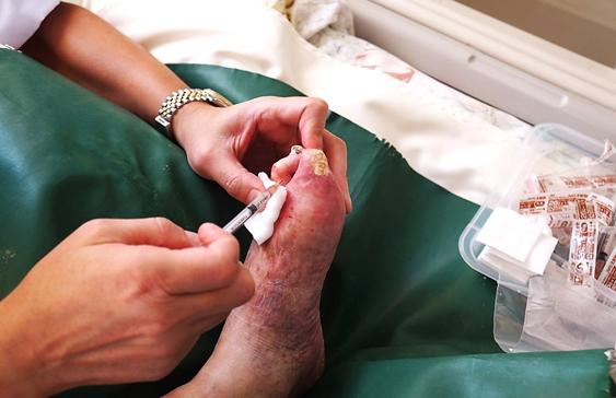 일본 니시하라 병원에서 버거병 환우회 대표 이성희씨가 버거병으로 썩어가는 발에 배양된 본인의 줄기세포 주사로 치료를 받고 있다.