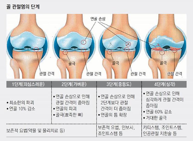 골 관절염의 단계 설명